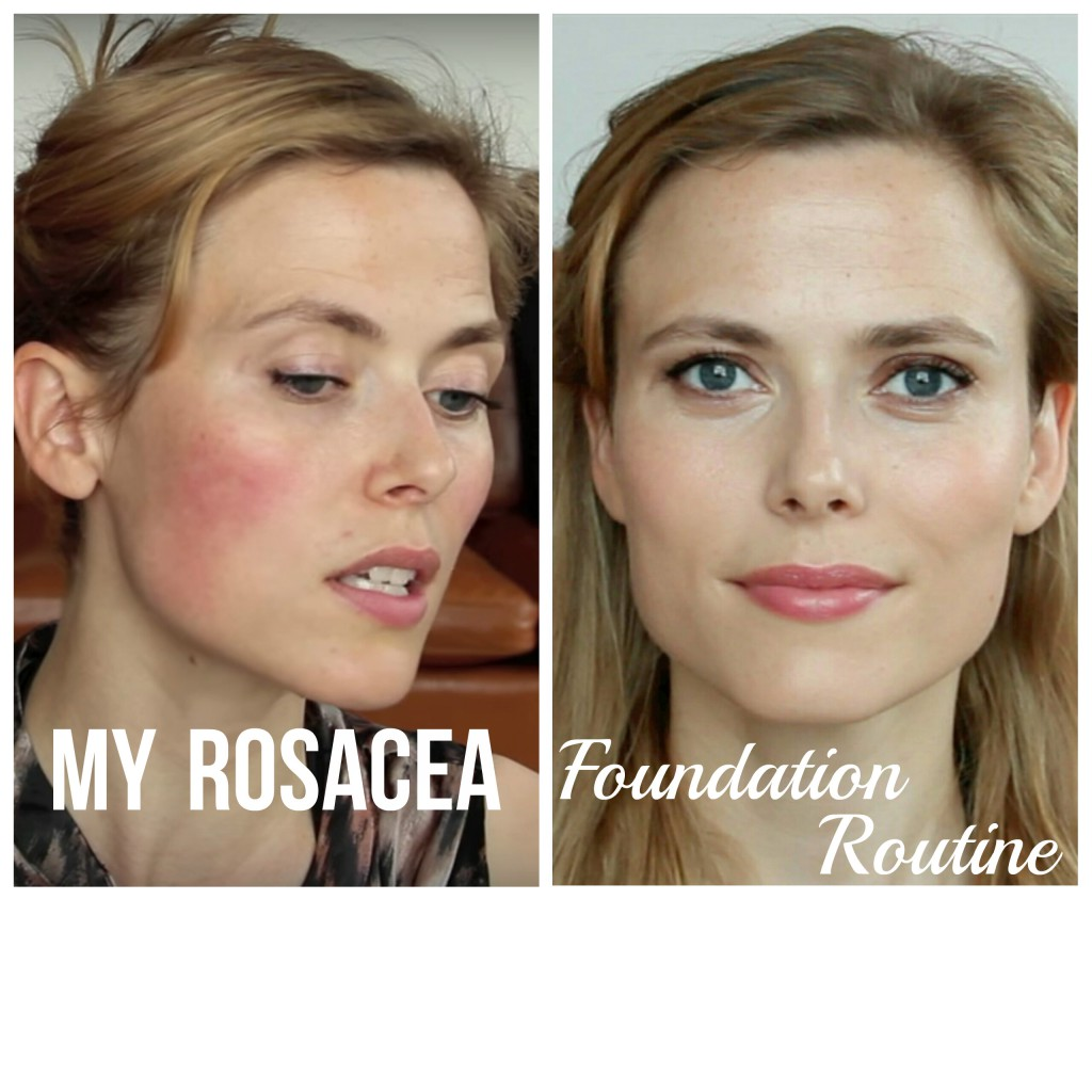 My rosacea foundation routine