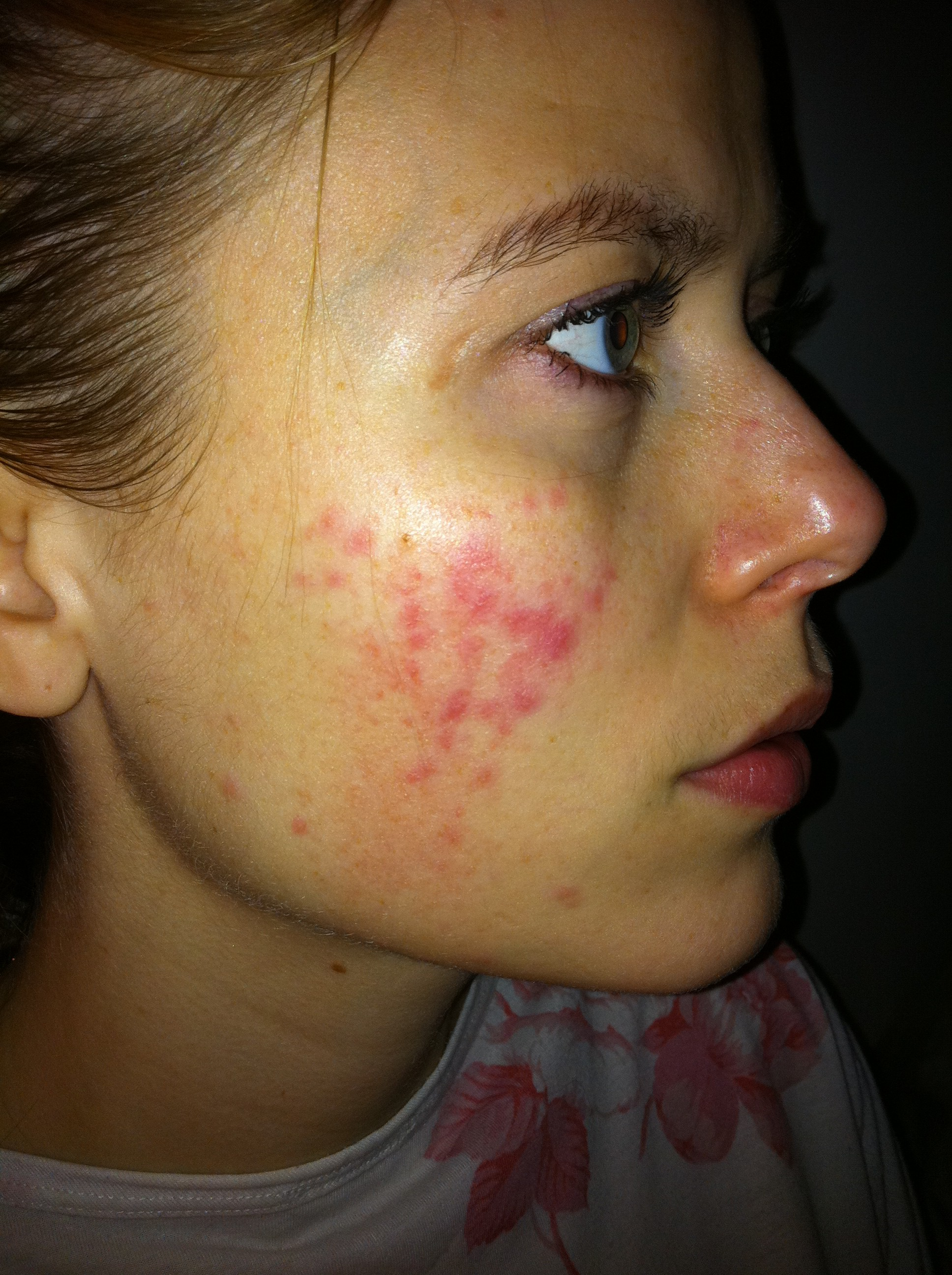 facial dermatitis pictures