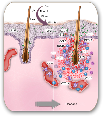 Triggers initiating a cascade of inflammation in rosacea skin around the hair follicle