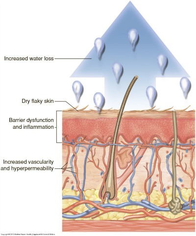 The thin and dry stratum corneum increasing permeability of potential irritants